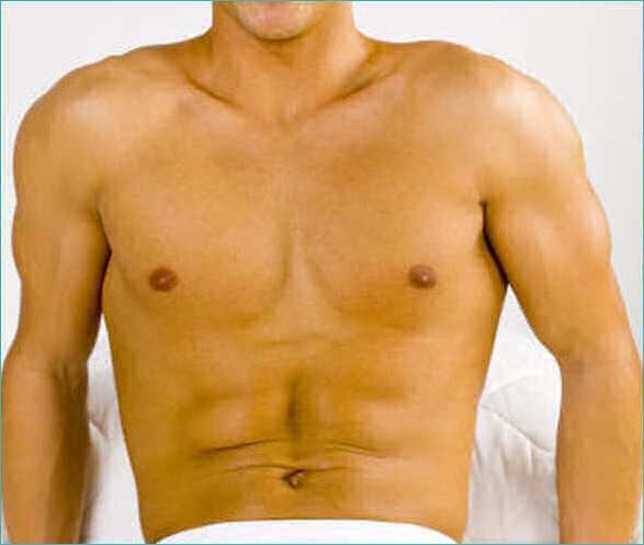 depilazione maschile roma